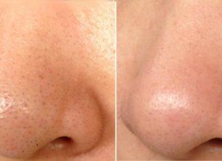 Avant et après le masque de points noir